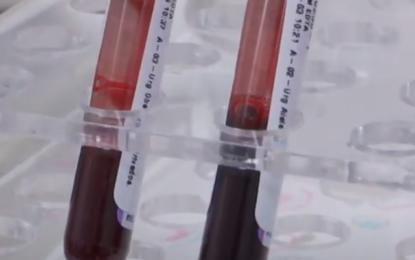 Alerta por demoras en tomas de pruebas y entregas de resultados Covid en Cali